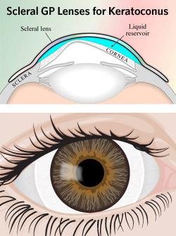 scleral-lens-250x335